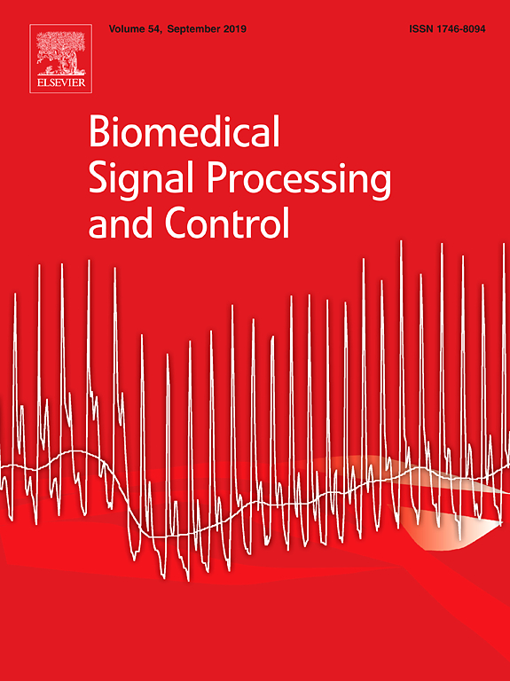 LESA Researchers published in Biomedical Signal Processing and Control for Work in Automatic Sleep Estimation Using Actigraphy